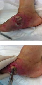 VELASQUEZ ANTONY - Il Wound Care Specialist nel trattamento del Piede di Charcot